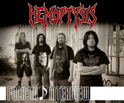Interview: Hemoptysis